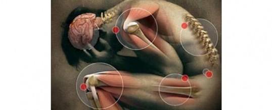 generalidades de la artrosis vertebral